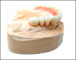 dental crowns lodnon