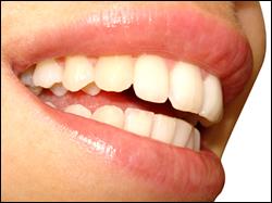 london teeth whitening l